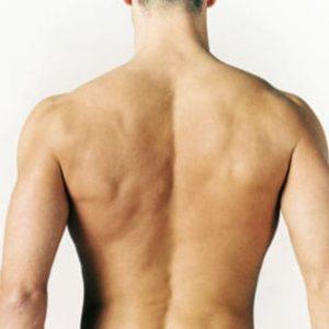 Depilación láser hombros espalda hombre